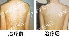 患者湿疹治疗前后对比