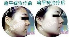 扁平疣治疗前后对比
