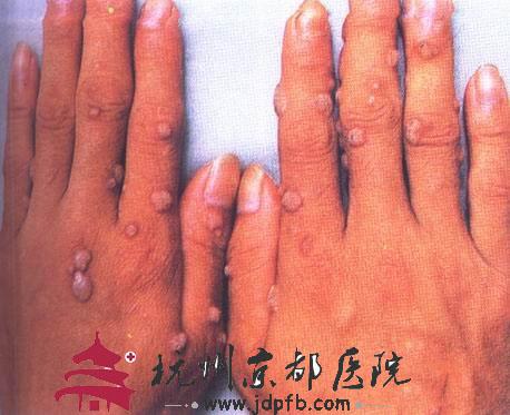 扁平疣症状图片