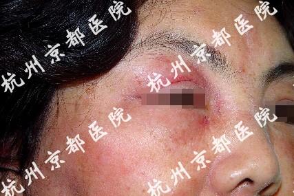 温州日光性皮炎医院