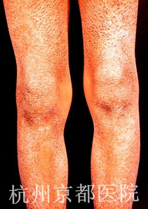 鱼鳞病患者的症状图片