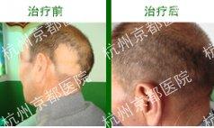 斑秃治疗前后对比