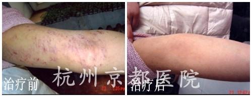 湿疹患者,温州华医堂皮肤病专科