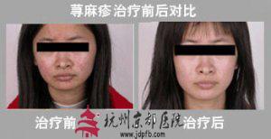 荨麻疹病例,温州华医堂皮肤病专科