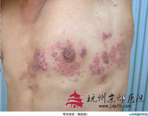 带状疱疹患者,温州华医堂皮肤病专科