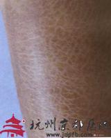 鱼鳞病的预防,温州华医堂皮肤病专科
