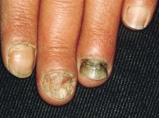 灰指甲的危害,温州华医堂皮肤病专科