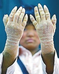 鱼鳞病的防护,温州华医堂皮肤病专科