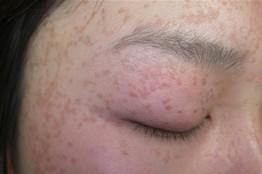 扁平疣的症状,温州华医堂皮肤病专科