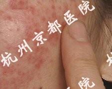 皮炎的护理,温州华医堂皮肤病专科