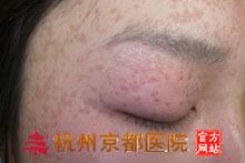 扁平疣的保健,温州华医堂皮肤病专科