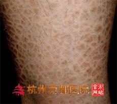 鱼鳞病的护理,温州华医堂皮肤病专科