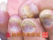 灰指甲的常识,温州华医堂皮肤病专科