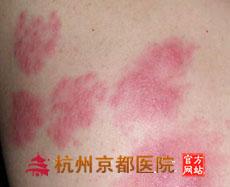 带状疱疹的常识,温州华医堂皮肤病专科